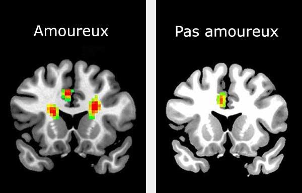 Gauche: scan d'un cerveau amoureux. Droite: scan d'un cerveau qui n'est pas amoureux.
